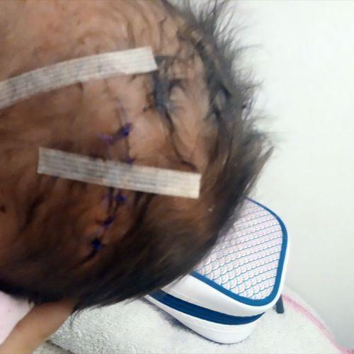 Afbeelding van Baby in hoofd gesneden tijdens keizersnede